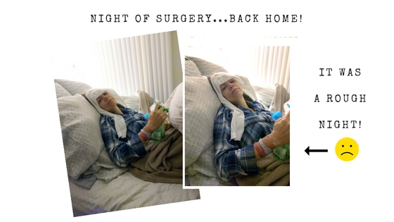 the_hourglass_project_explant_surgery_002